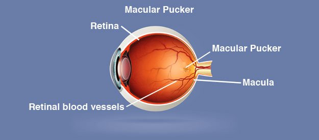 Macular Pucker Natural Treatment